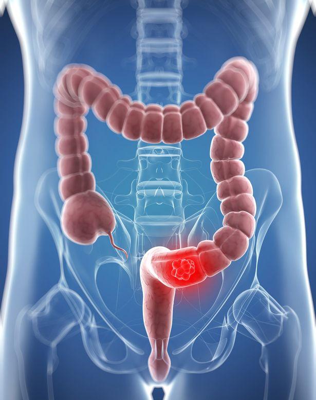 Colon Cancer – The threat is real | Kauvery Hospital