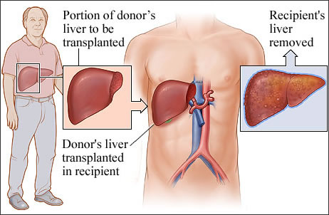 10 reasons that cause liver disease kauvery hospital