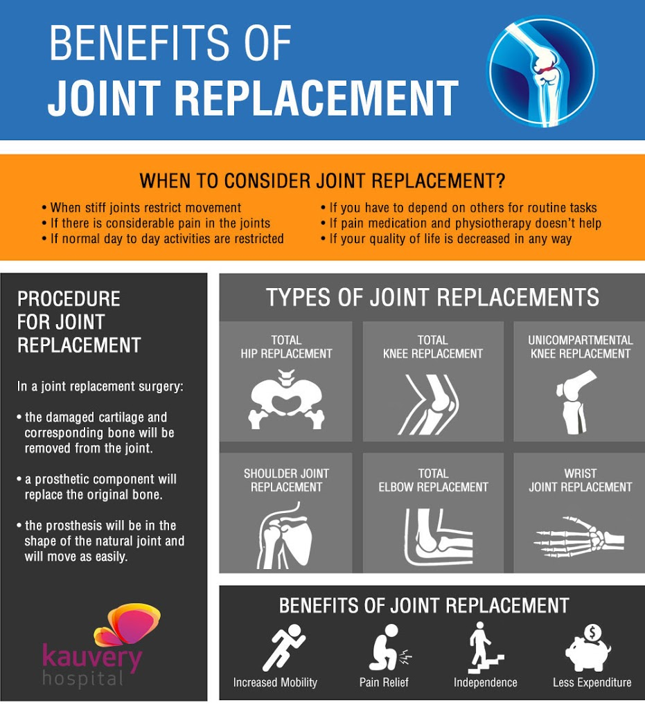 Benefits of Joint Replacement