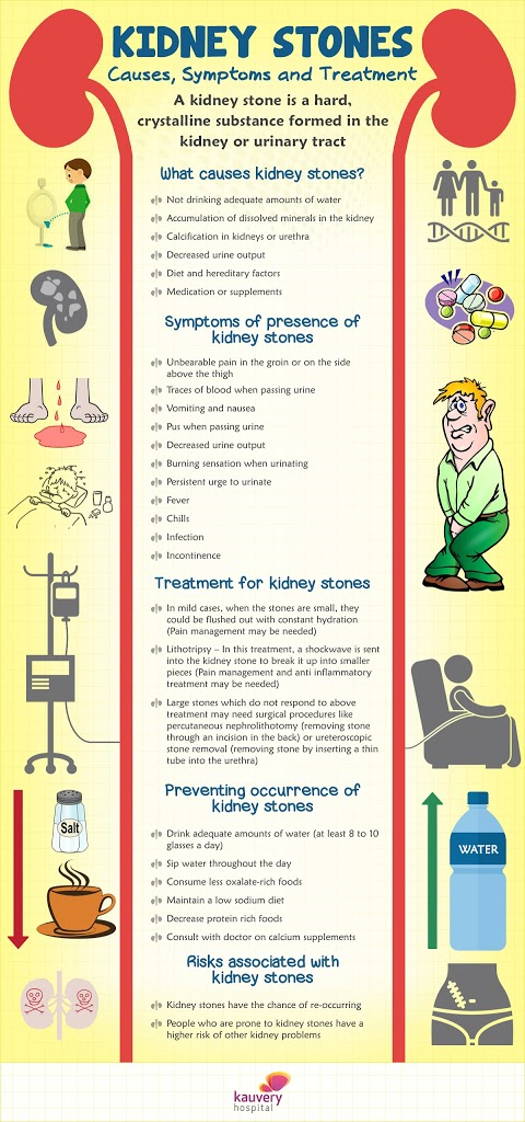Kidney Stone Causes Symptoms And Treatments Kauvery Hospital