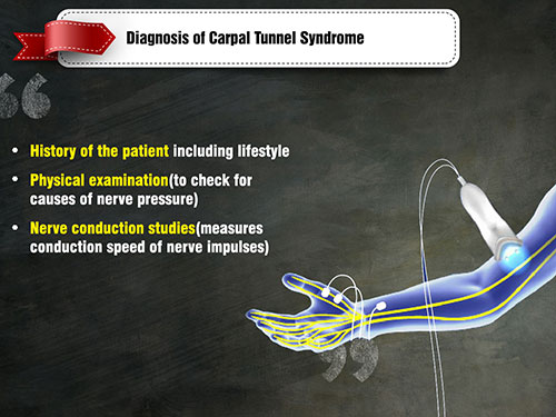 nerve study results - moderate carpal tunnel? - HealthBoards