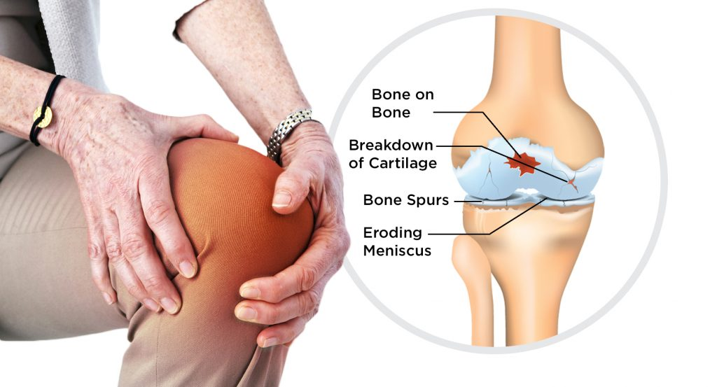 Causes, Symptoms and Treatment of Osteoarthritis