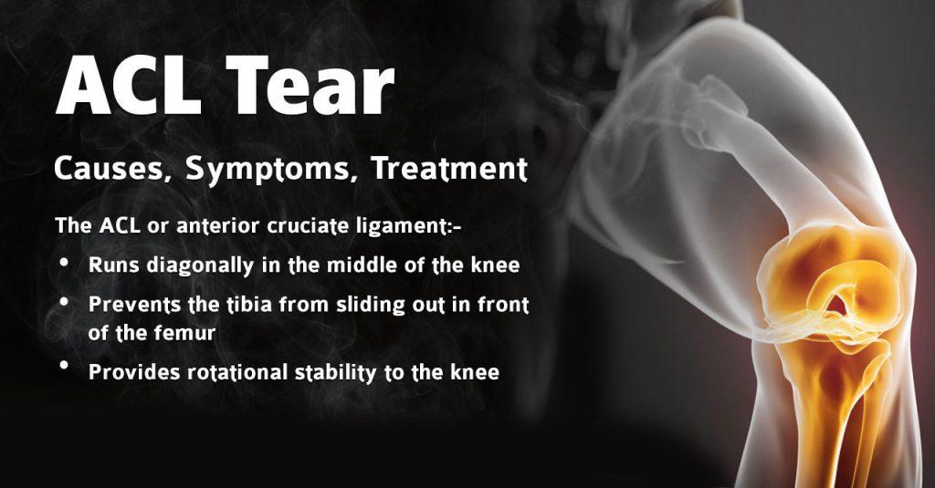 Acl Tear  U2013 Causes  Symptoms  Treatment