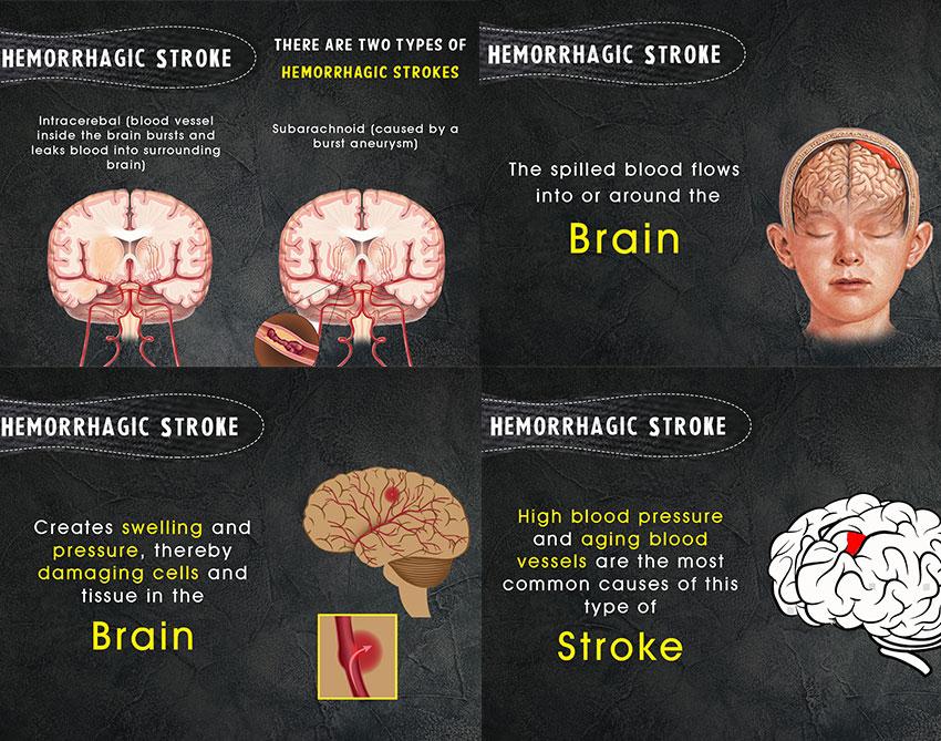 Types of Strokes | Kauvery Hospital