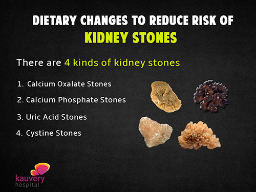 Dietary changes to reduce risk of kidney stones | Kauvery ...
