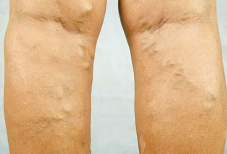 Treatment for Varicose Veins
