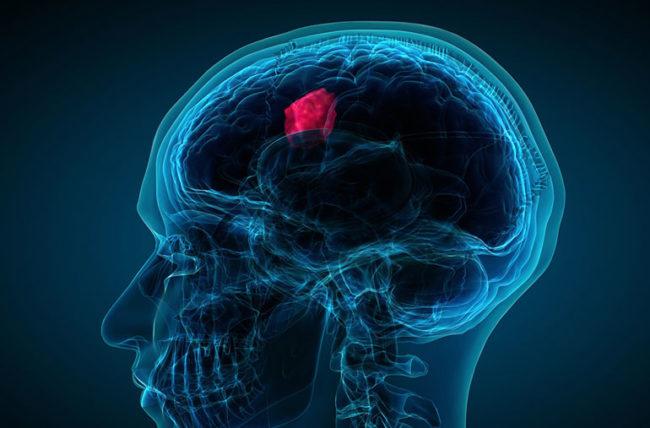 Warning Signs of Brain Tumour