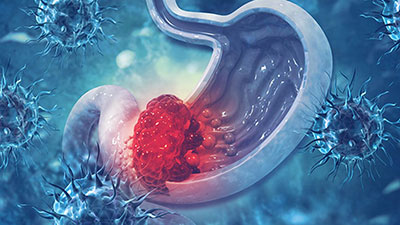 Stomach-cancers-types-symptoms-and-treatment