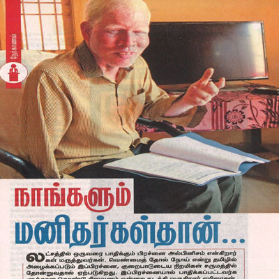 Story on albinism - Kungumam News
