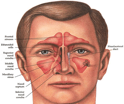 Chronic Sinusitis: Current Concepts