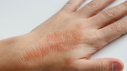 Kauvery Hospital   Patient Newsletters   Managing Eczema In